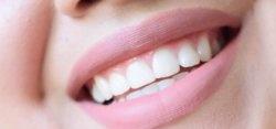 Branqueamento seguro dos dentes em casa
